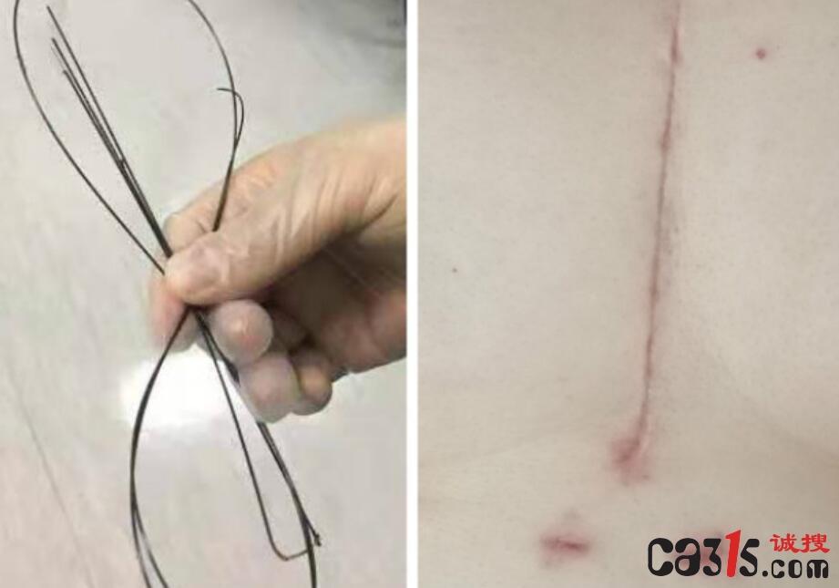 曝光:陕西省宝鸡市中医医院重大医疗事故将1.5米导丝遗留患者体内2月